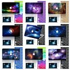 "3in1 Galaxy Paint Rubberized Hard Case Cover For Macbook Pro Air 11"" 12"" 13"" 15"""