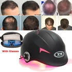 64 / 128 Diodes Laser Hair Loss Treatment Regrowth LLLT Promoter Germinal Cap