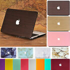 "Frosted Matte Hard Case Cover Skin for Macbook Air Pro 11 12 13 15"" & Retina"