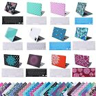"MacBook Air 13"" Inch Designer Case Pattern Plastic Shell Cover + Keyboard Skin"