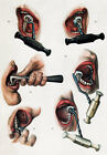 ML08 Vintage 1800's Medical Tooth Extraction Dentist Poster Re-Print A4