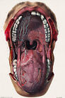 ML19 Vintage 1800's Medical Mouth & Tongue Surgical Anatomy Poster  A2/A3/A4