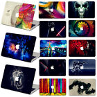 "Painting Hard Case Cover +Keyboard+SP For Macbook Pro Air 11""13""15"" Retina 12"""
