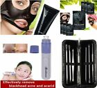 Electric Facial Pore Cleanser Skin Cleaner Dirt Vacuum Acne Remover Pimple Spots