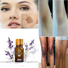 50ml Ultra Brightening Spotless Oil Skin Care Natural Pure Remove Ance Lwx